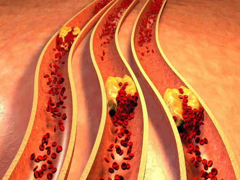 Loại bột nàygiúp làm giảm lượng cholesterol xấu trong máu